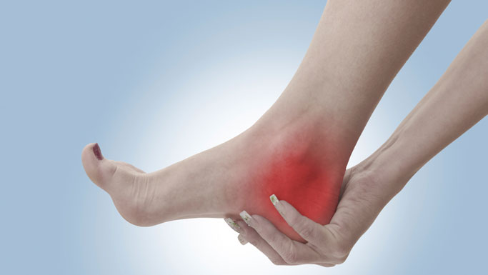 San Ramon Chiropractic Treatment for Plantar Fasciitis